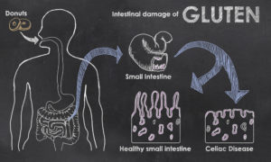 Infographic showing person with Celiac disease's reaction to gluten